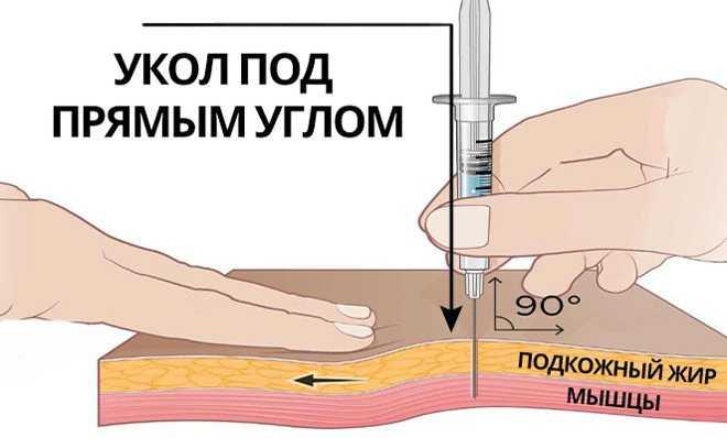Уколы прогестерона при беременности на ранних сроках дозировка