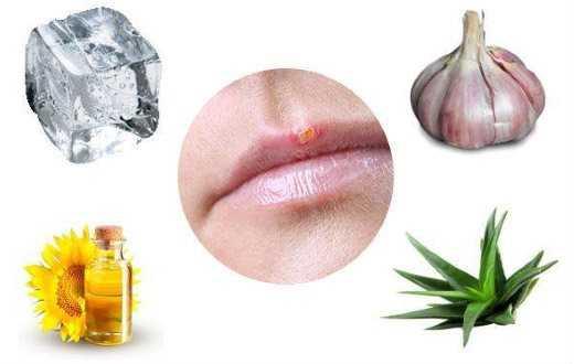 Герпес на губах при беременности: в разных триместрах и способы его лечения