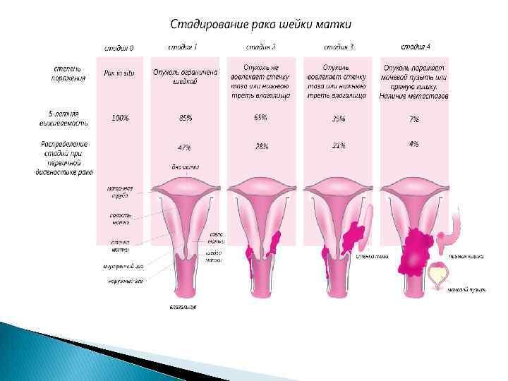 Размеры матки во время беременности: таблица по неделям, нормы, несоответствие сроку / mama66.ru