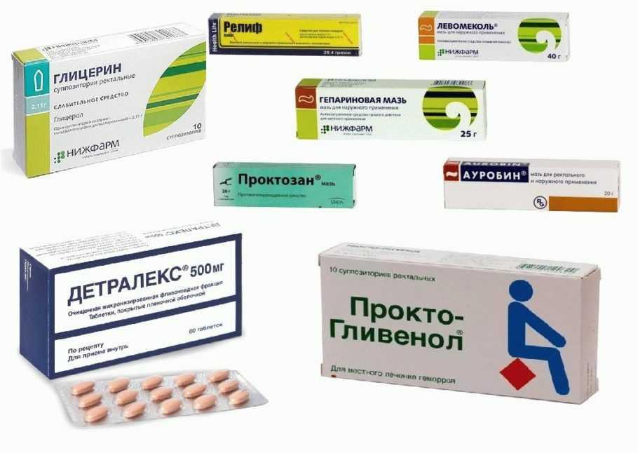 Препараты от геморроя при беременности. чем лечить геморрой во время беременности и после родов