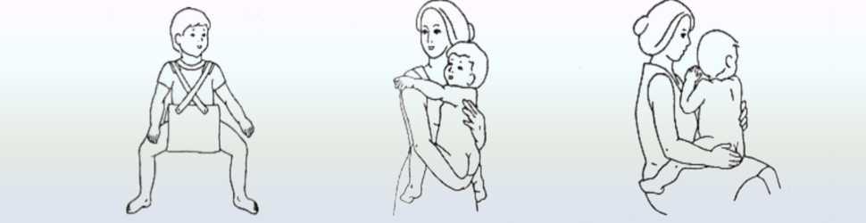 Массаж и упражнения лфк при дисплазии тазобедренных суставов у грудничков и детей до года - врач 24/7