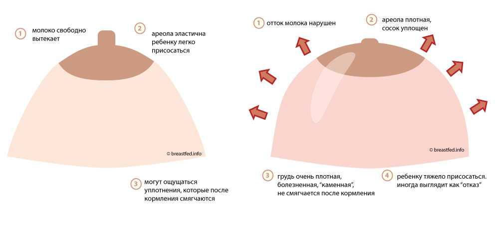 Когда начинает болеть грудь при беременности / mama66.ru