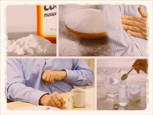 Сода от изжоги при беременности - можно ли соду при изжоге беременным: во время беременности само то