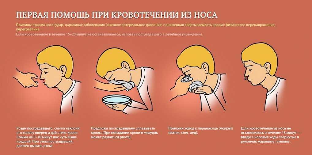 Кровь из носа у взрослых - причины частых кровотечений