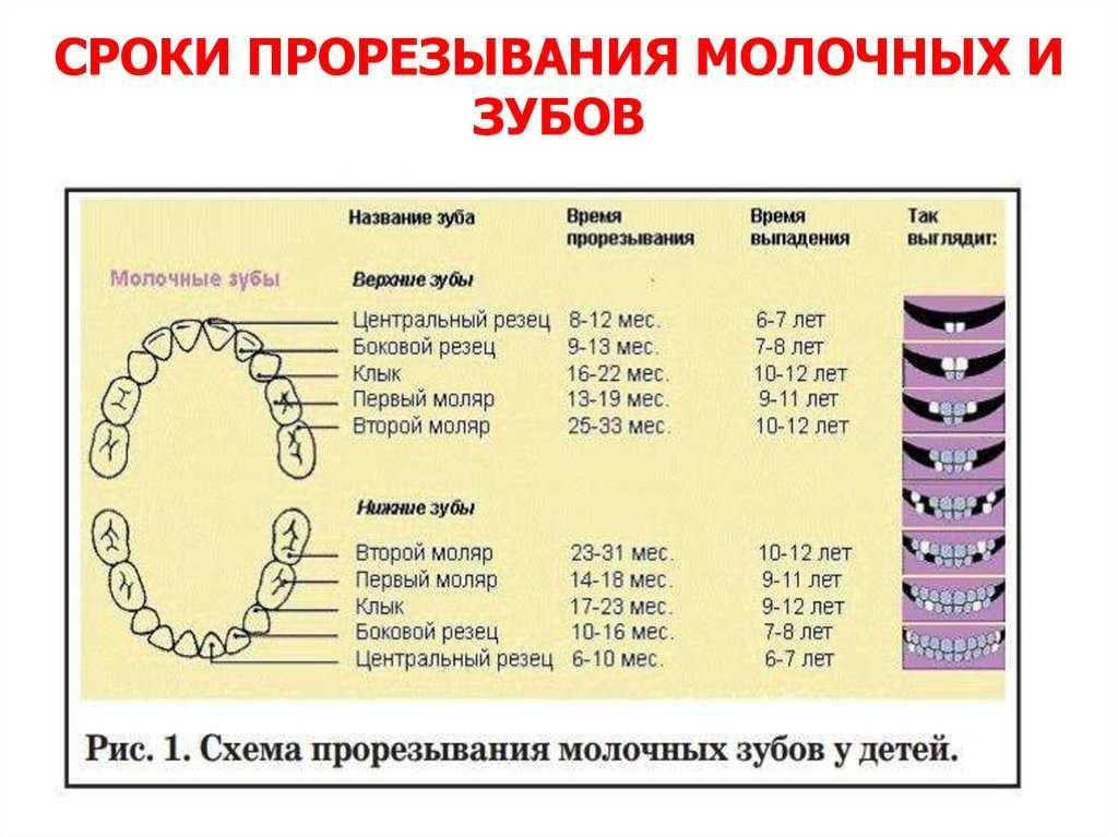 Симптомы и признаки прорезывания зубов у детей: первых молочных и коренных, глазных  и моляров