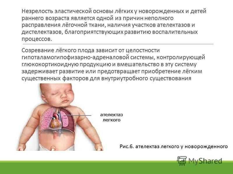 На какой неделе беременности ребенок может сам дышать