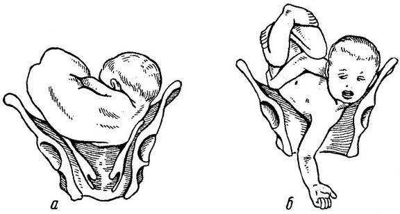Положение и предлежание плода - определяющий фактор в течении родов    - здоровье