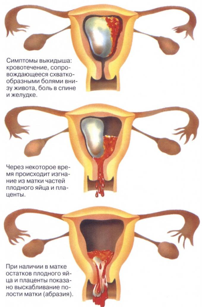 Беременность 6 недель – живот и выделения (20 фото): коричневые выделения, тянет низ живота и кровянистые или светло-коричневые, розовые выделения