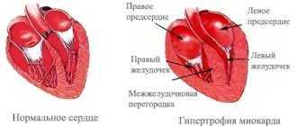 Гиперэхогенный фокус в левом желудочке сердца плода: что такое гиперфокус и опасен ли он