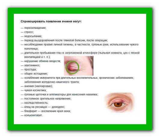 Психосоматика ячменя на глазу правом и левом, психосоматические причины по луизе хей, лечение