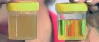 Аскорбиновая кислота в моче