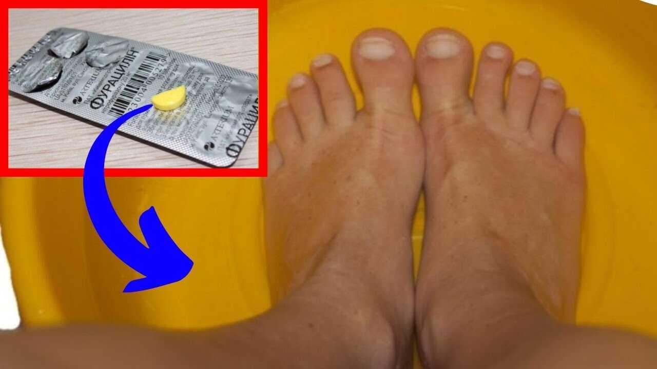Потливость ног: из-за чего возникает, как от нее избавиться и как убрать неприятный запах?