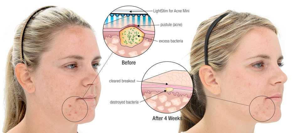 Прыщи на шее у женщин: причина появления, какой орган не в порядке? | moninomama.ru